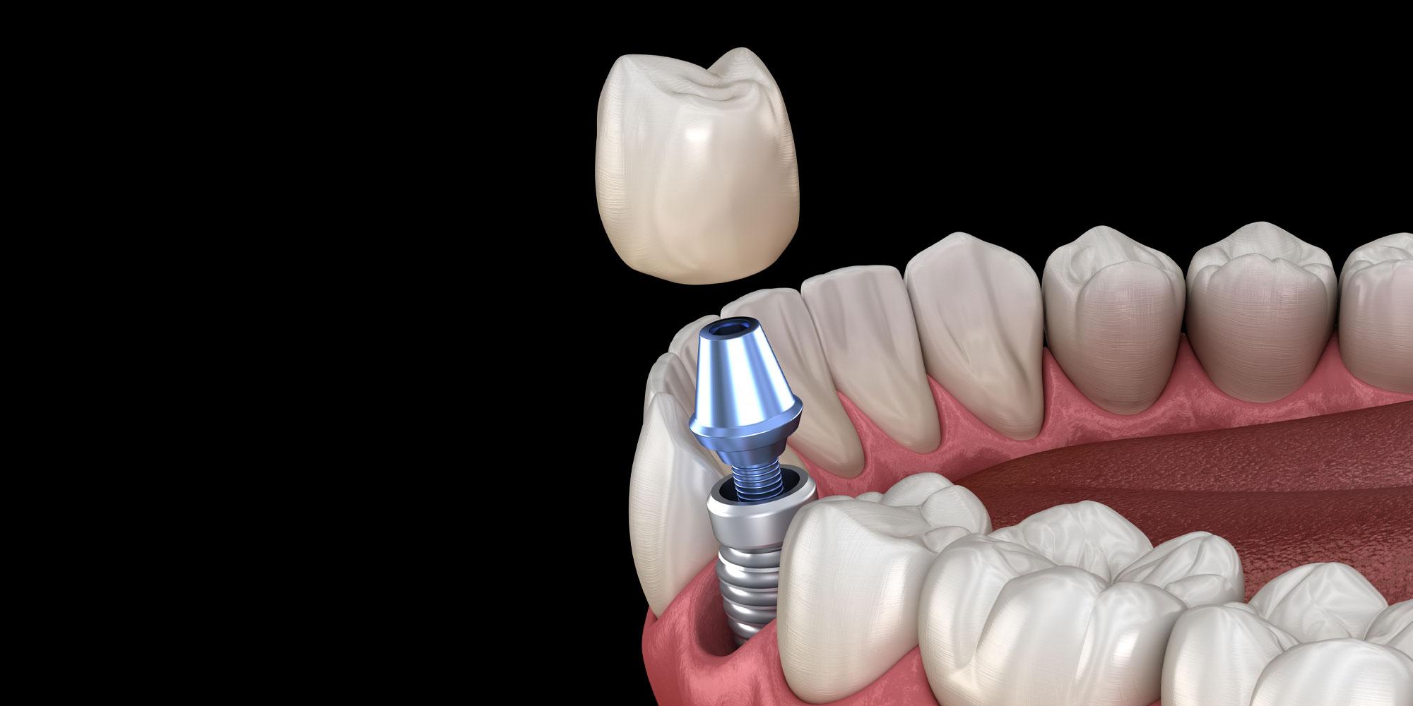 implant zebowy wroclaw 2